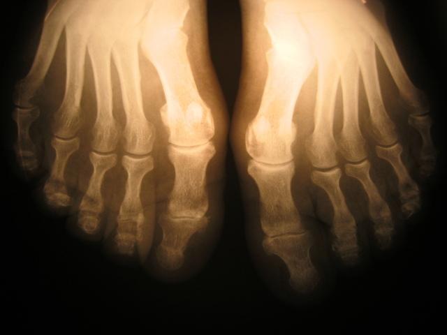 x-ray-foot-1435088-640x480